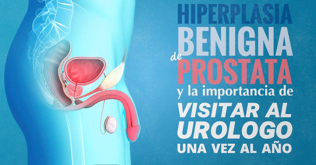 hiperplasia benigna de próstata