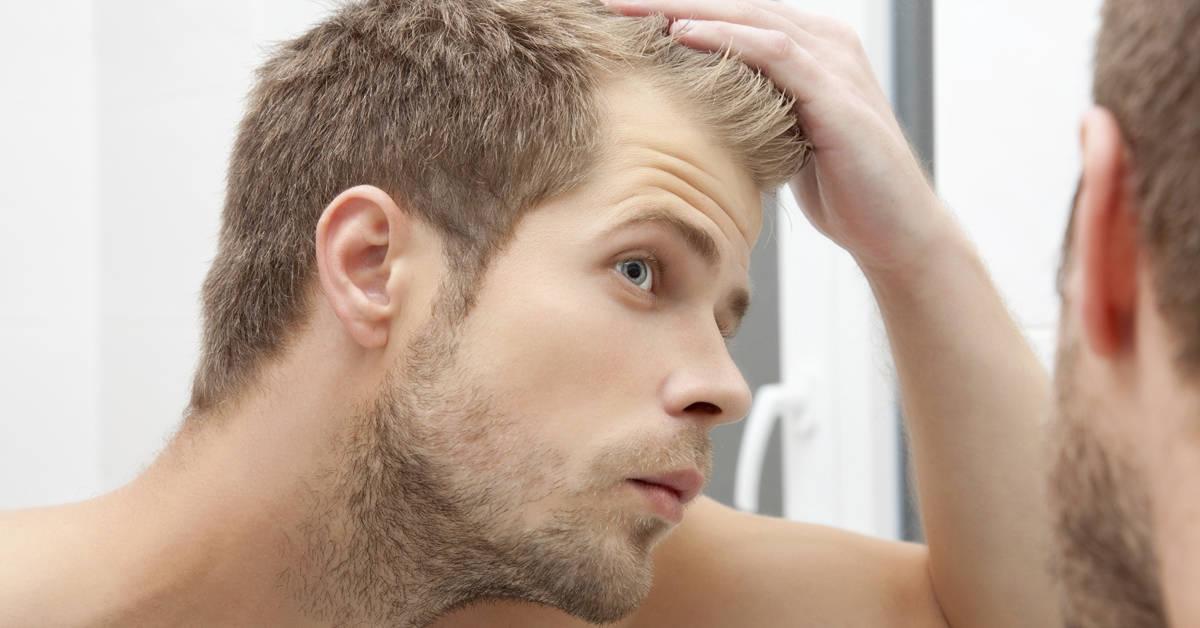 alopecia androgénica hombres