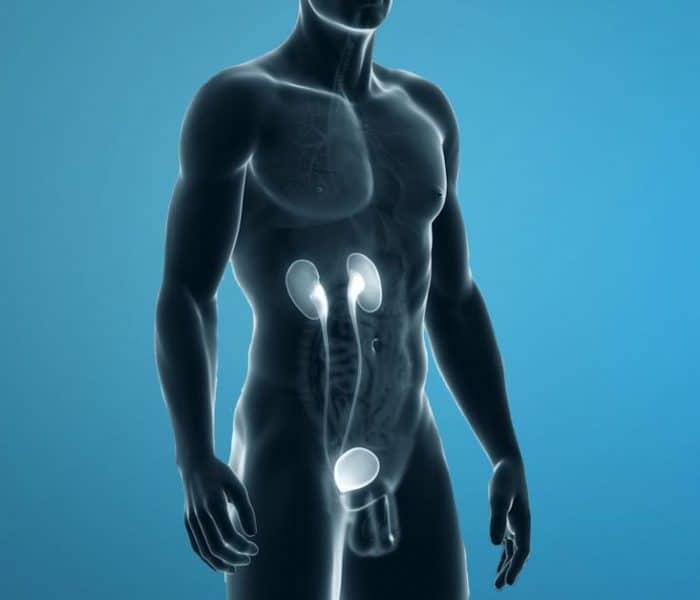 Cálculos renales, litiasis y piedras en el riñón | Síntomas, factores de riesgo y tratamiento